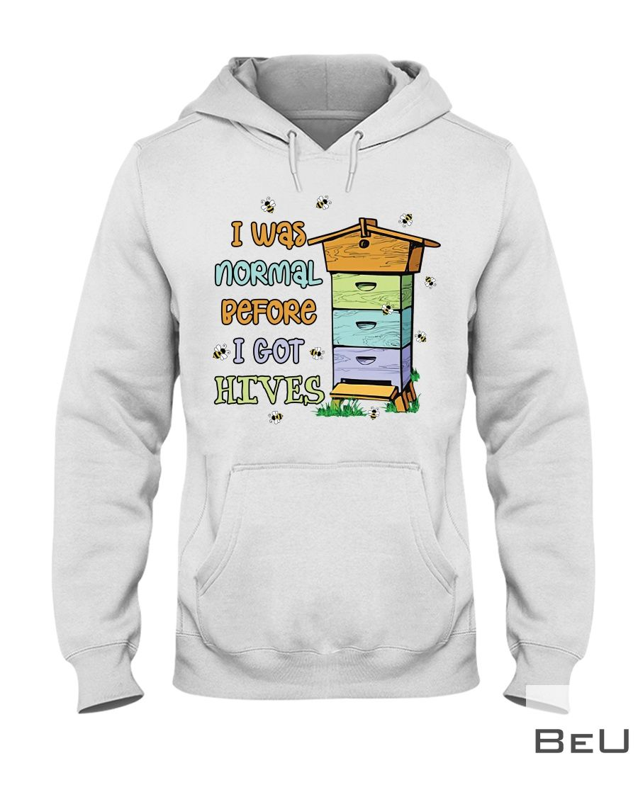 I was normal before I got hives hoodie_result